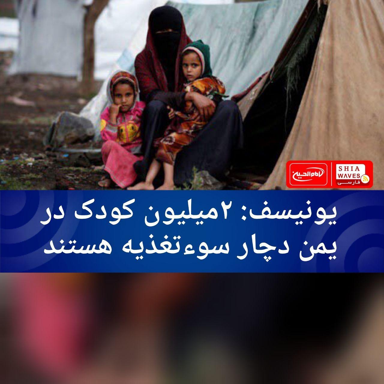 تصویر یونیسف: ۲میلیون کودک در یمن دچار سوءتغذیه هستند