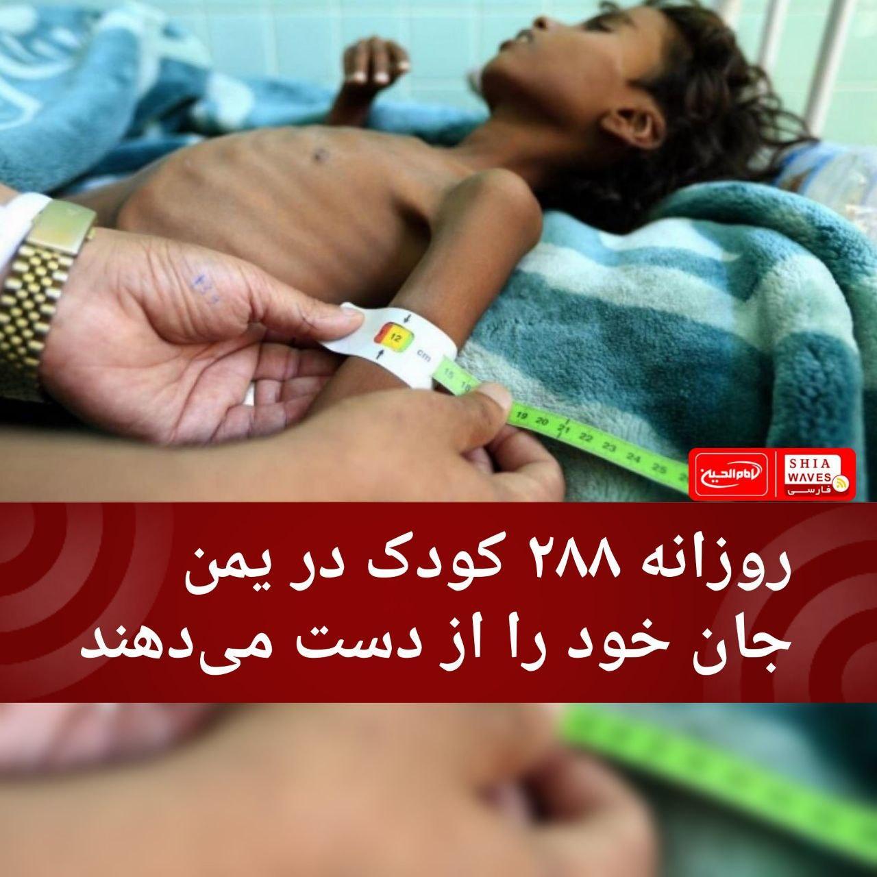 تصویر روزانه ۲۸۸ کودک در یمن جان خود را از دست میدهند