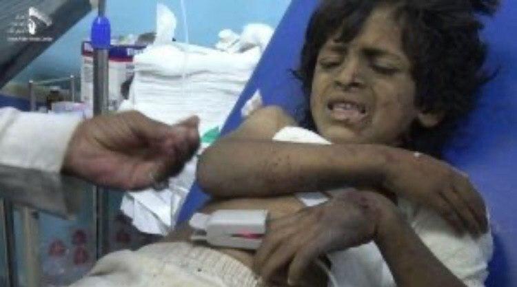 تصویر حمله جنگنده های سعودی به یک عروسی در یمن