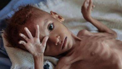 تصویر صدها هزار کودک یمنی از سوء تغذیه رنج میبرند